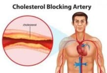 Can you lower high cholesterol naturally?