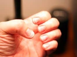 How to Get Healthy Fingernails After Removing Acrylics Nails