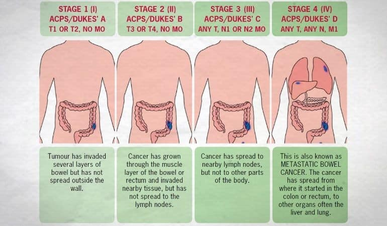 Bowel cancer stages and size