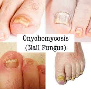 Can onychomycosis go away on its own?