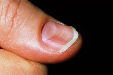 what are fingernail and toenail abnormalities?