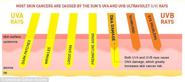 Most Skin Cancers are Caused by The Sun's UVA and UVB Ultraviolet Rays