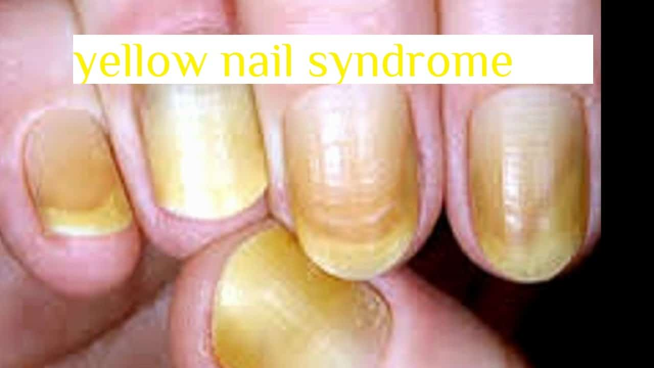 How Do You Get Rid Of Yellow Nails